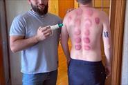 Вакумные  банки после массажа спины